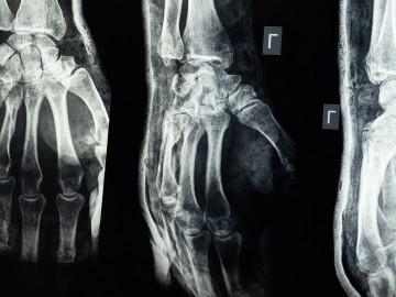 Cuidando nuestros huesos: 10 consejos para prevenir la osteoporosis